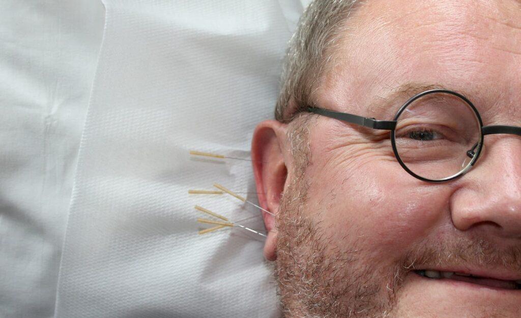 Sesión de acupuntura en las orejas para pérdida de peso